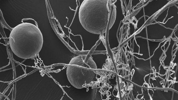 Electron Spores Hyphae